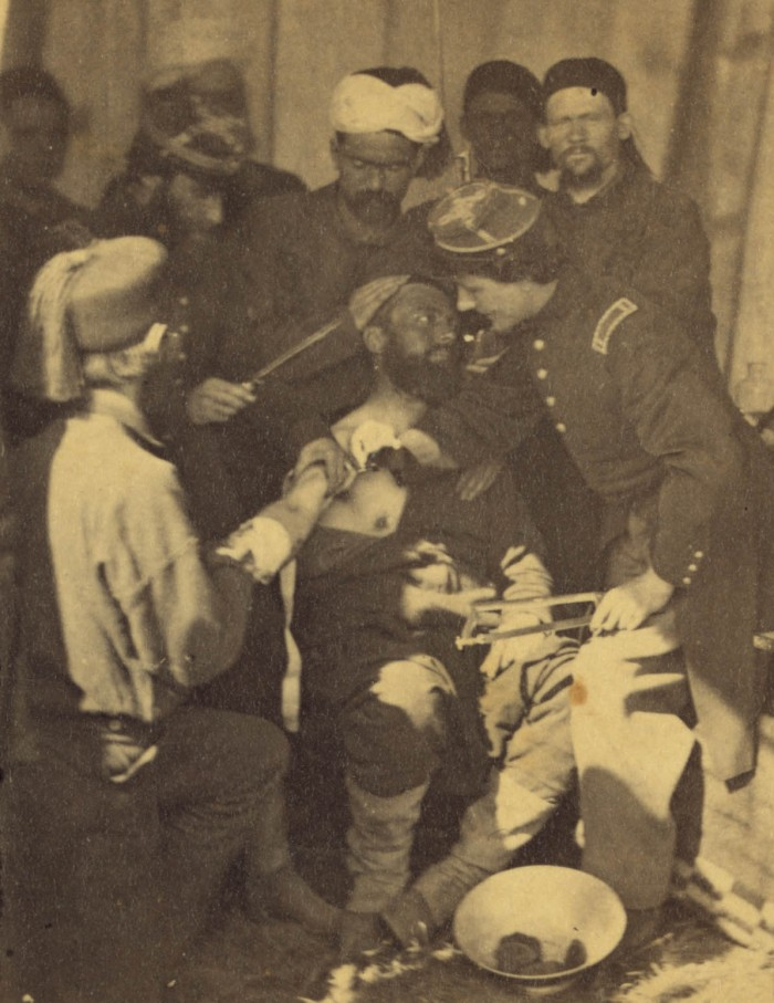 Stereograph shows Zouave soldiers in a field hospital, tending to an injured soldier.